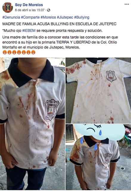 Posteo en Facebook con tres imágenes del pequeño con la camisa llena de sangre