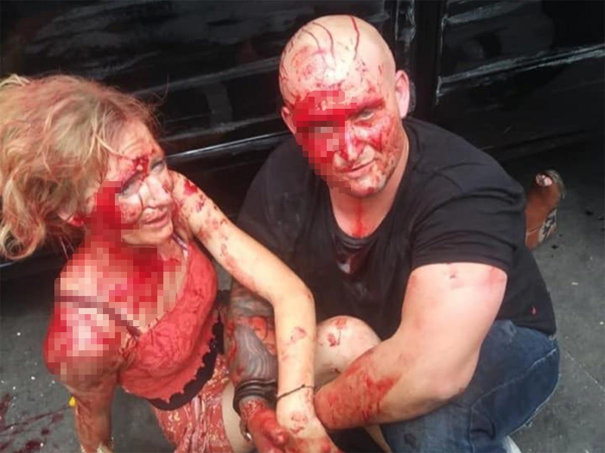 Una persecución provocada por una pareja de origen estadunidense culminó con el atropellamiento de varios vendedores ambulantes y otras personas