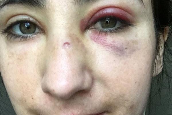 la golpearon por ser gay, piden justicia