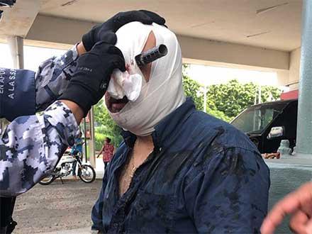 Hombre en Veracruz con un cuchillo insertado en el ojo