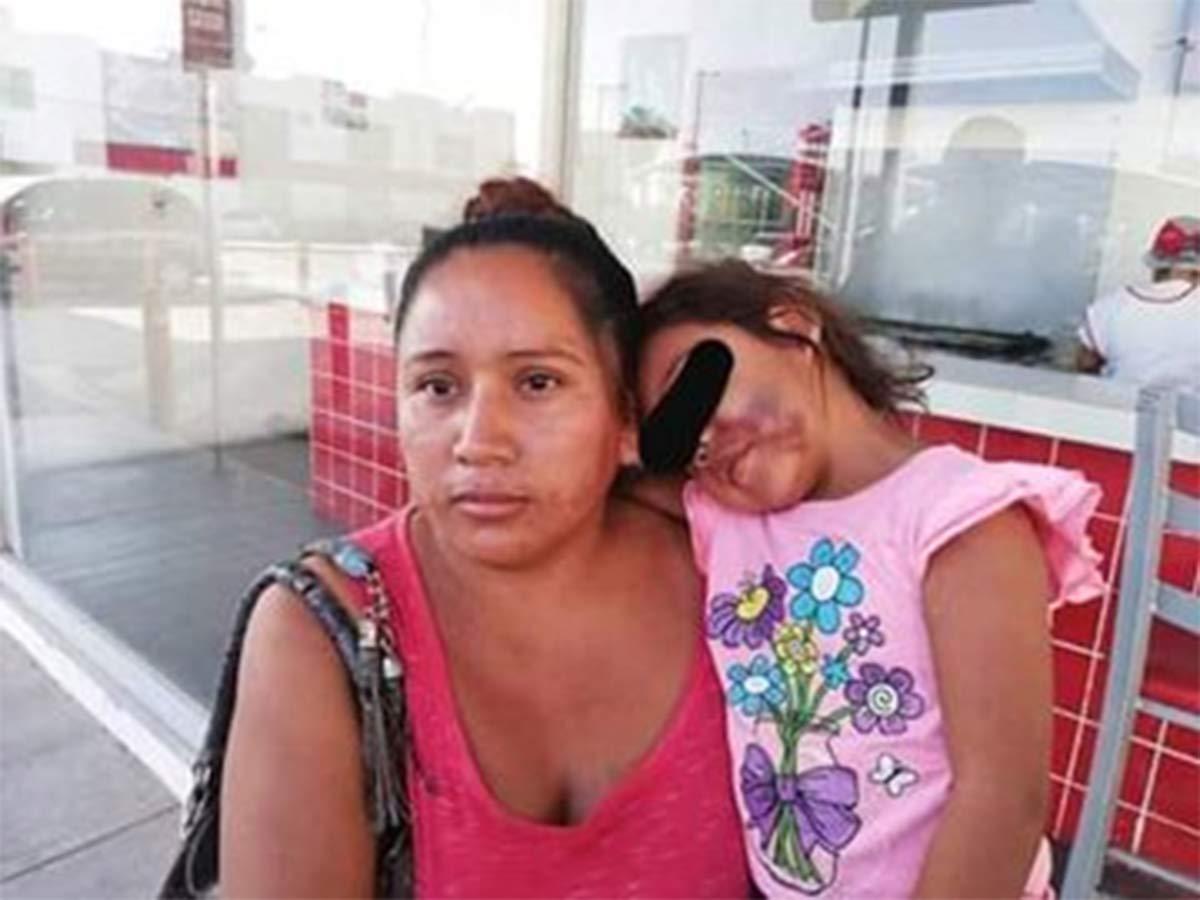 La madre de Jade no daba crédito, su pequeña tenía el rostro desfigurado. ¿Cómo? ¿Qué pasó?