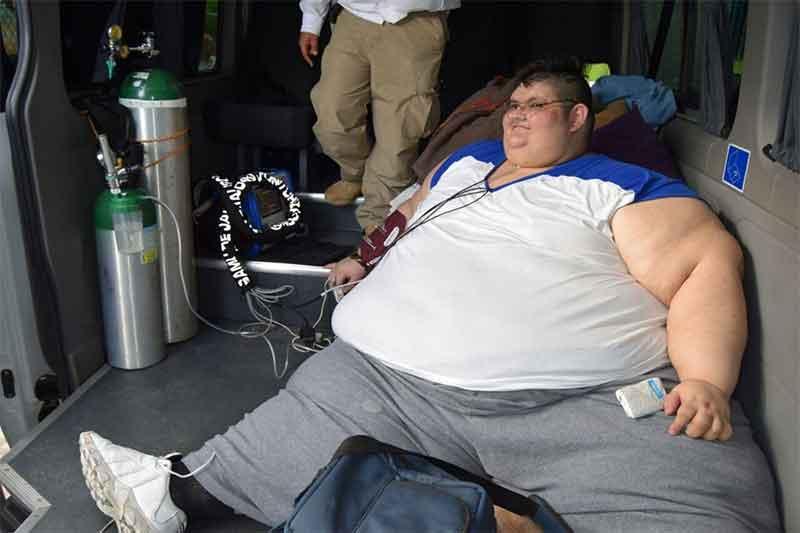 Como bajar de peso un obeso morbido