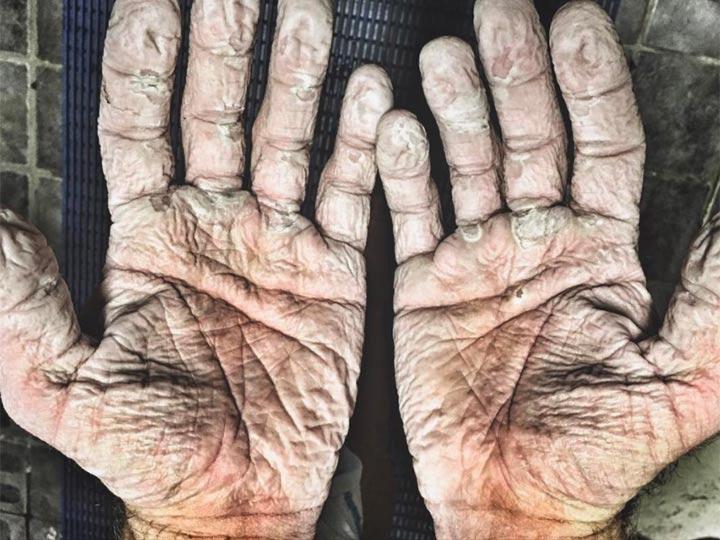 Así quedaron las manos de un campeón olímpico tras una travesía