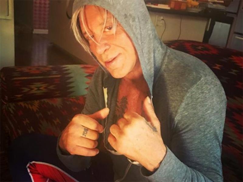 Mickey Rourke se mejora de una cirugía