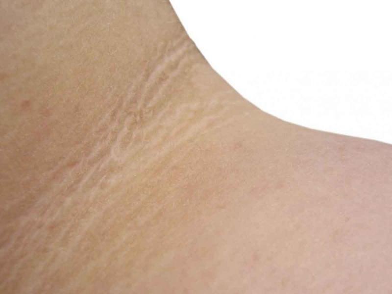 líneas en el cuello en diabetes