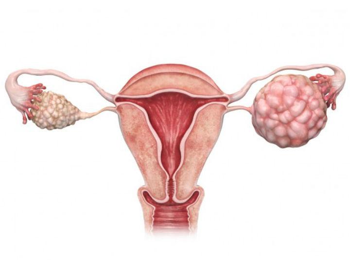 quemazon en los ovarios