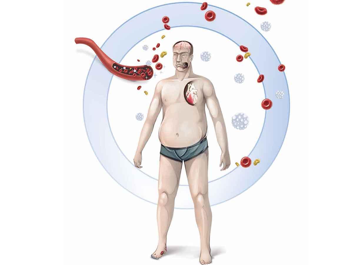 estadísticas de diabetes amenaza mundial 2020
