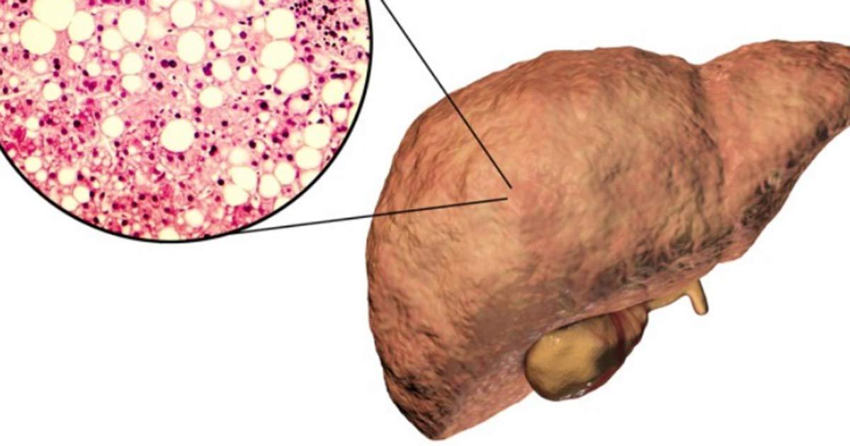 Advierten: 50% de mexicanos podría tener hígado graso