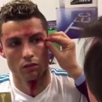 Así suturaron la herida de Cristiano Ronaldo en el vestidor del Real Madrid