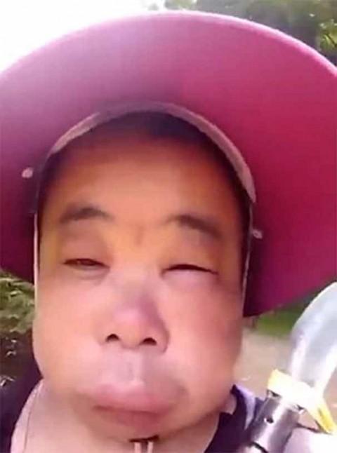 Así de hinchada quedó por molestar a las abejas