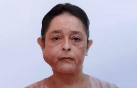 Se trató de una intervención riesgosa debido a que se corría el riesgo de alguna lesión en el nervio facial lo que dejaría a la paciente con una parálisis el resto de su vida. Foto: Especial