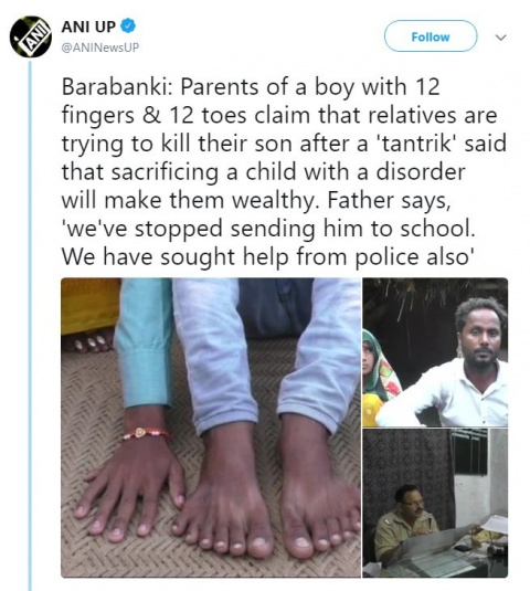 Niño con 24 dedos corre el riesgo de morir asesinado
