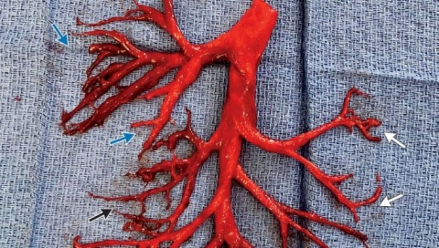 Hombre pierde la vida tras expulsa sorprendente coágulo de sangre