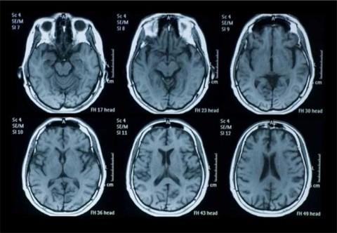 Condenan a 4 años de cárcel a mujer por fingir tener cáncer cerebral y estafar a familiares y amigo