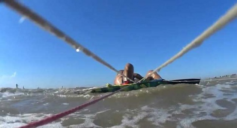 Pitbull sorprende a surfista y le desgarra un brazo