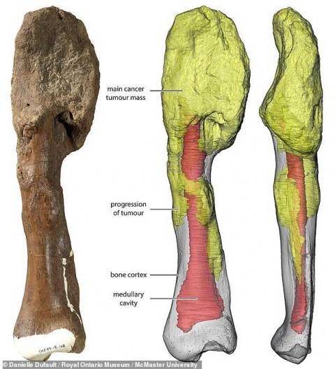 Descubren rastros de cáncer en dinosaurio de 77 millones de años