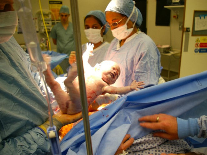 Aunque la madre tenía muerte cerebral desde febrero, un bebé nació en perfecto estado de salud gracias a los médicos.