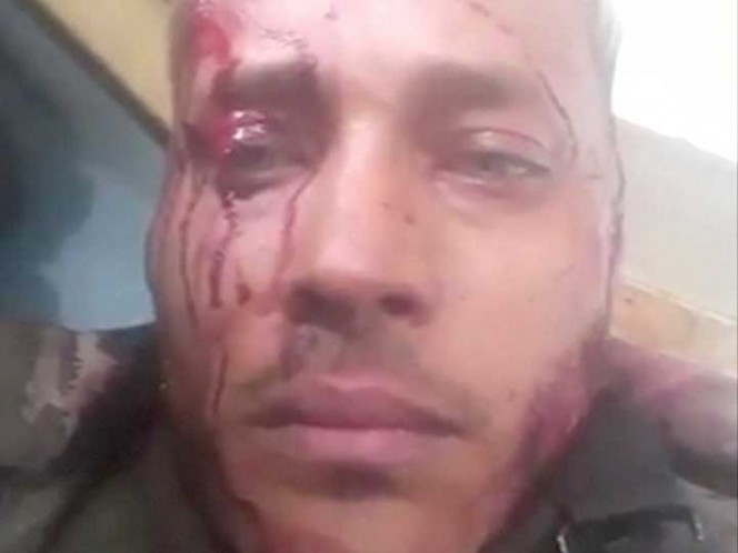 VENEZUELA: OSCAR PEREZ: Policía rebelde venezolano murió por tiro en la cabeza; acusan 'ejecución'