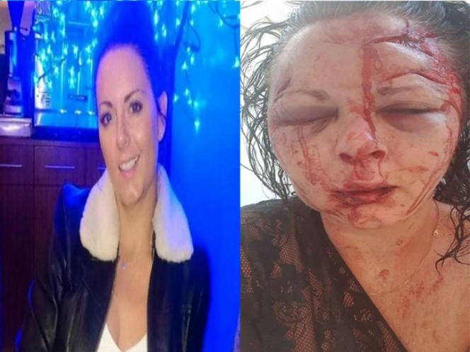 Turquía: Mujer es cruelmente golpeada por rehusarse a tener sexo