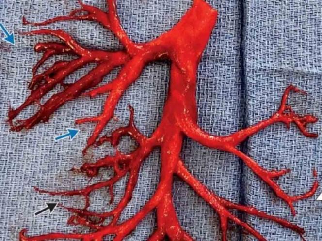 Hombre expulsa un enorme coágulo de sangre tras un ataque de tos