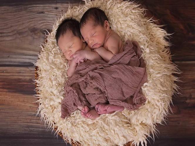 Dos gemelos nacieron con 12 días de diferencia — Parto histórico