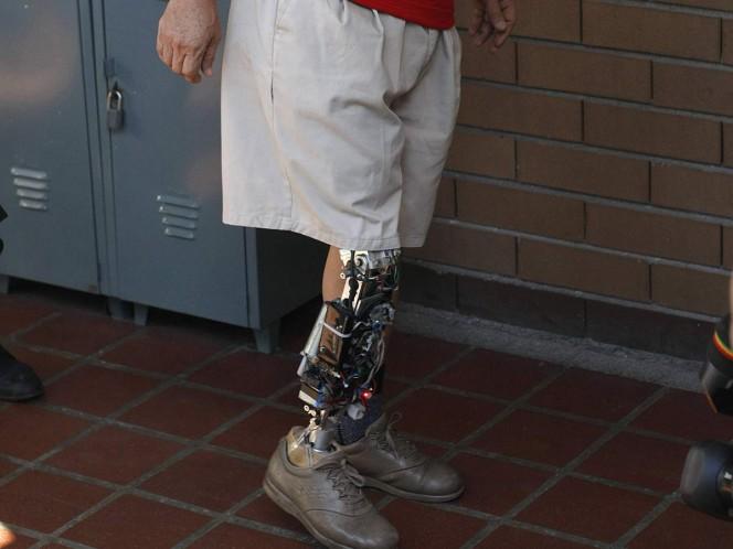 UNAM crea licenciatura para desarrollo y fabricación de prótesis