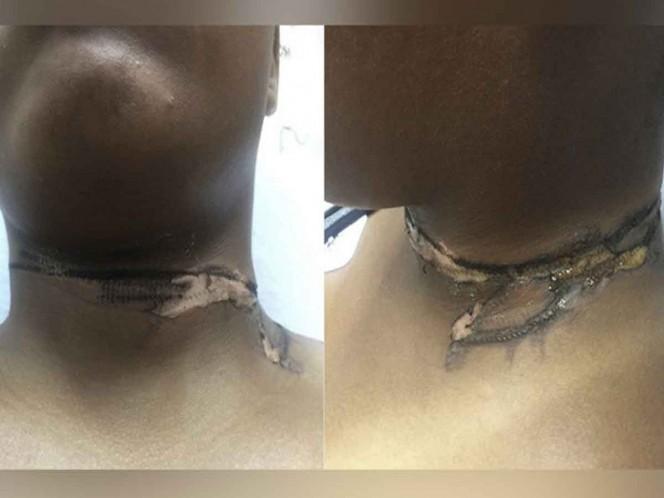 Joven sufre serias quemaduras por usar cargador 'pirata'