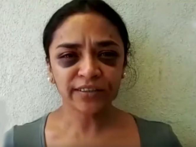 Mitzi Torres, periodista de Morelia, Michoacán denunció la agresión que sufrió. Foto: Captura de video