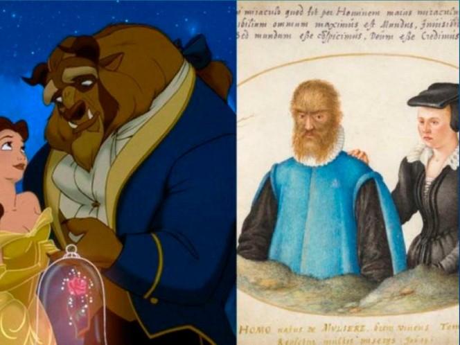 La verdadera historia del hombre lobo que inspiró 'La Bella y la Bestia'. Foto: especial
